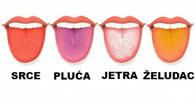 Na šta nas moze upozoriti jezik? Procenite zdravlje po izgledu jezika.