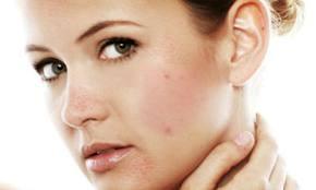 Maske za sužavanje pora na licu. Prirodne maske protiv akni i mitesera