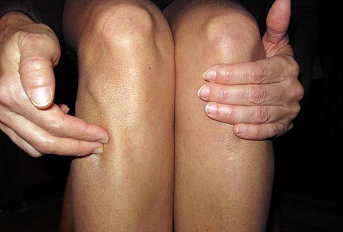 ZuSanLi  Tačka dugovečnosti ili tačka od stotinu bolesti na vašem telu