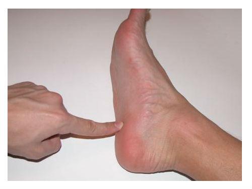 Petni trn ili petna bodlja. Kako se osloboditi bola u peti.