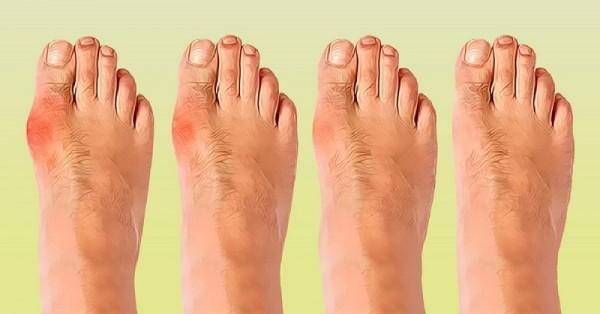 Kako se osloboditi čukljeva na nogama i rešiti se bolova u zglobovima