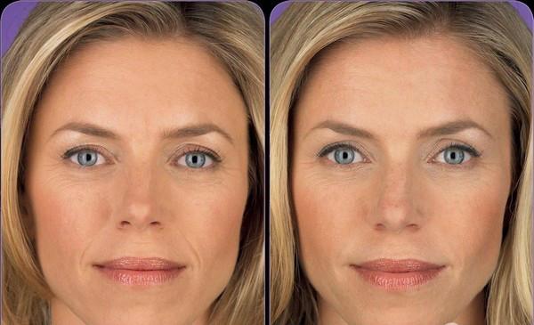 Efikasna domaća maska za zatezanje lica. Prirodni botoks!