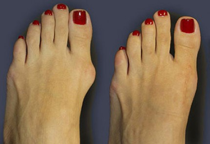 Kako se osloboditi čukljeva na nogama i rešiti se bolova u zglobovima.