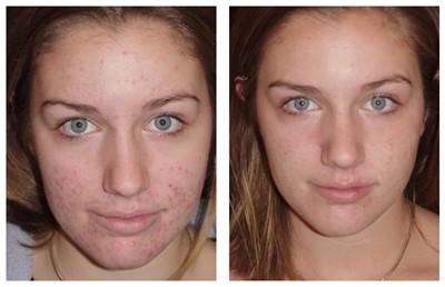 Domaći losion za problematičnu kožu lica. Leči akne i bubuljice.