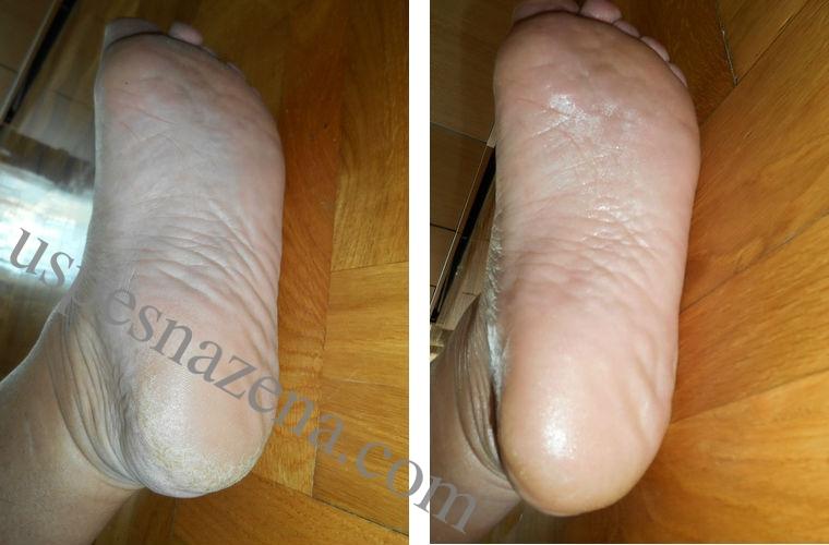 Efekat glatkih i nežnih stopala. Kako očistiti pete sa sodom bikarbonom.
