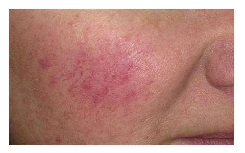 Kako izlečiti kuperozu – crvenilo i popucale kapilare na licu.