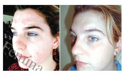 Čudesna maska za problematičnu kožu lica. Zaboravite na crvenilo, akne i mitisere.
