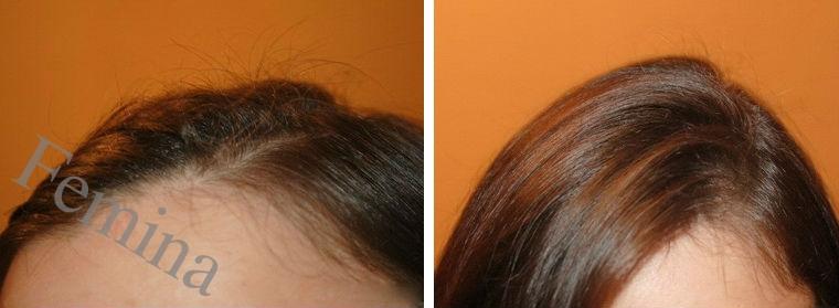Maska sa lukom protiv opadanja kose