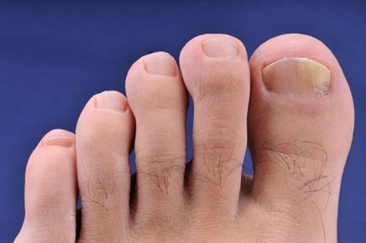 Gljivice na noktima. Kako izlečiti gljivičnu infekciju noktiju.