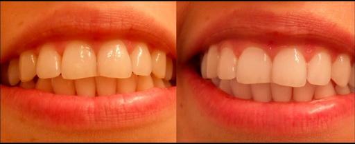 Za 5 minuta izbelite zube. Kako izbeliti zube aktivnim ugljem.