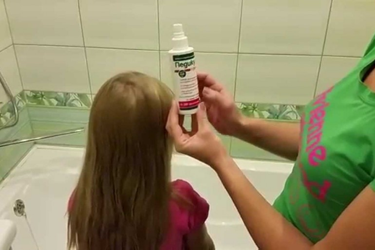 Domaći šampon protiv vaški. Kako pripremiti.