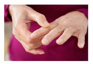 Masaža prstiju