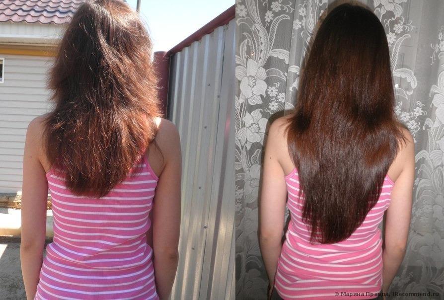 Kvasaci protiv opadanja kose i za njen brži rast.