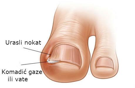Kako lečiti urasli nokat na nozi u kućnim uslovima