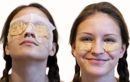 Čudesna maska za negu kože oko očiju. Otklanja podočnjake, izbeljuje kožu i pegla sitne bore.