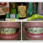 Izbeljujemo zube za 1-2 nijanse uz pomoć ulja čajnog drveta