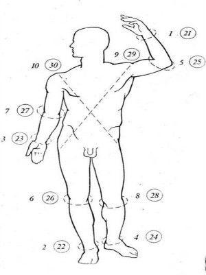 Efikasan način lečenja hipertenzije jodom!