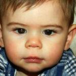 Ako primetite OVO u oku svog deteta - hitno idite kod lekara, da ne bude kasno!