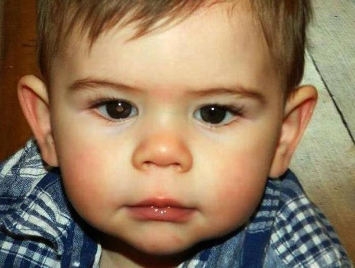 Ako primetite OVO u oku svog deteta - hitno idite kod lekara, da ne bude kasno
