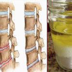 So i ulje: lekovita smesa protiv osteohondroza!