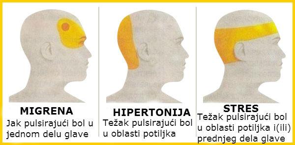 Simptomi hipertonije, migrene i stresa.