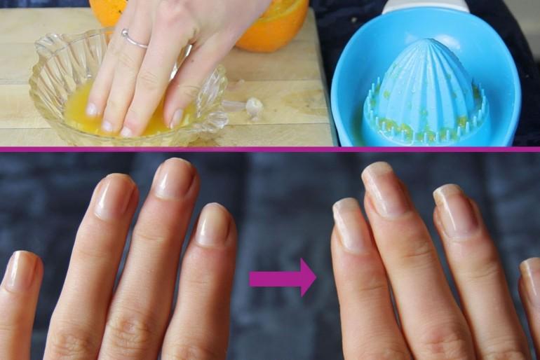 Kako ubrzati rast noktiju.