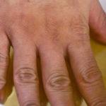 Jabukovo sirće - provereno oružje u borbi protiv artritisa i bolova u zglobovima.