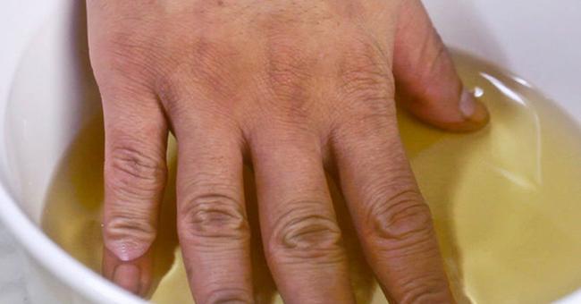 Jabukovo sirće – provereno oružje u borbi protiv artritisa i bolova u zglobovima.