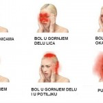 Nemojte ignorisati glavobolju: 5 signala koji upozoravaju na ozbiljno oboljenje.