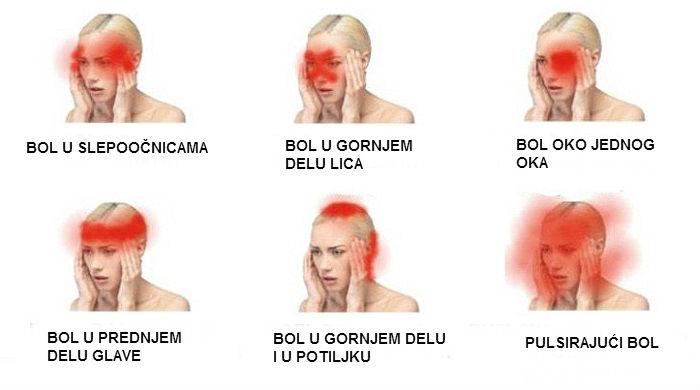 Vrste glavobolje