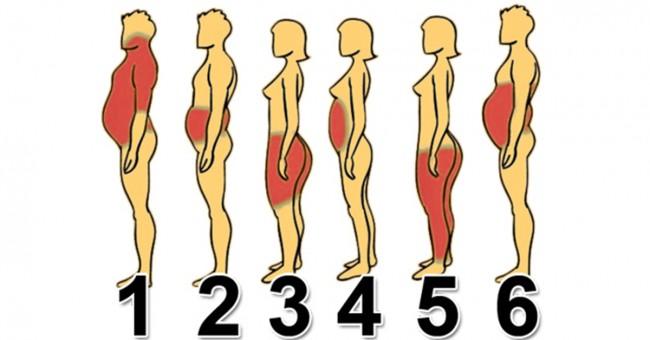 6 tipova gojaznosti