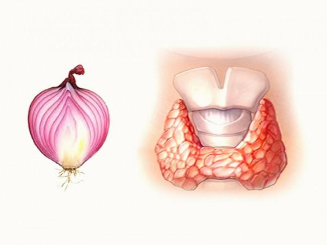 luk za lečenje štitne žlezde.