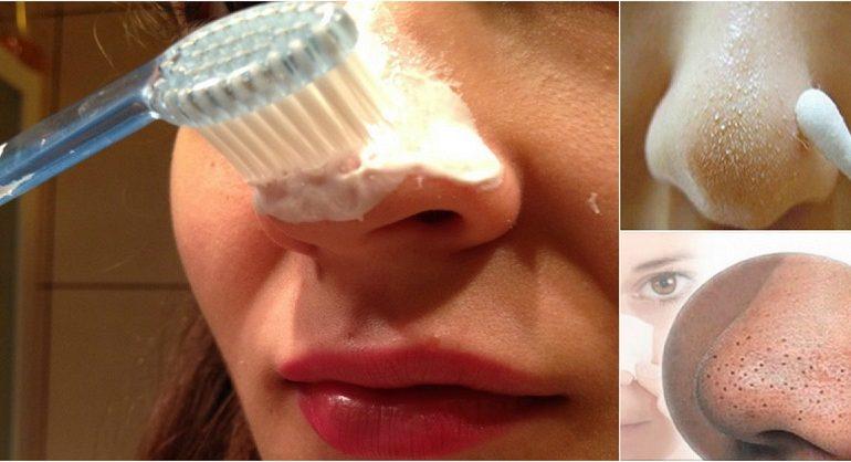 Kako ukoloniti mitisere na licu uz pomoć četkice za zube.