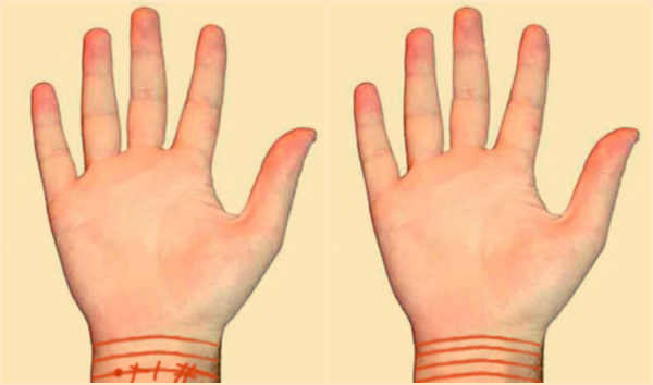 Šta označavaju linije na ručnom zglobu