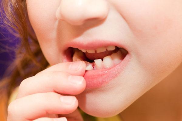 Zašto treba čuvati mlečne zube