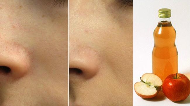 Jabukovo sirće za lice.