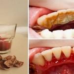 Kako ukloniti zubni kamenac pomoću jednog sastojka.