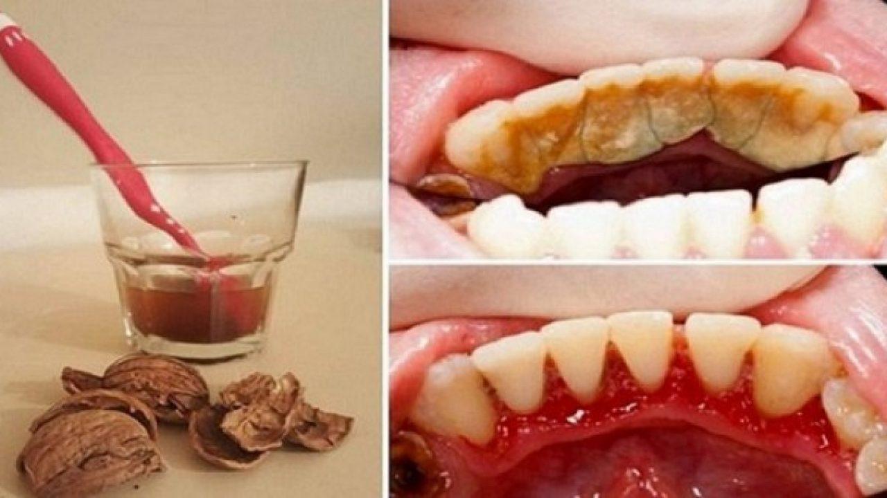 3 hidrogen za zube