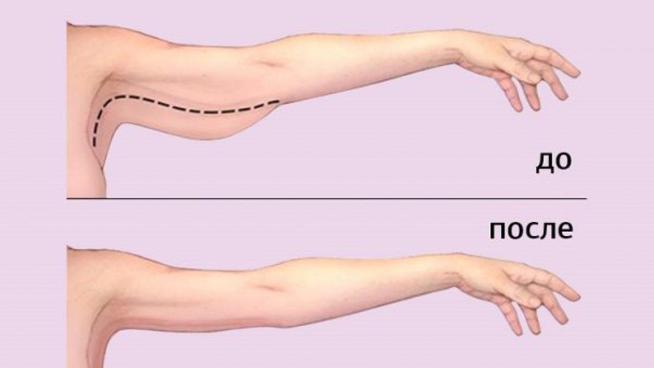 vezbe za mrsavljenje ruku i ramena