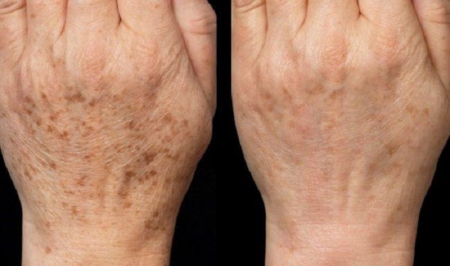 Kako posvetliti kožu