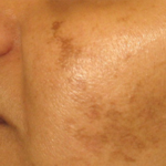 Kako se rešiti fleka na licu, pega i hiperpigmentacije.