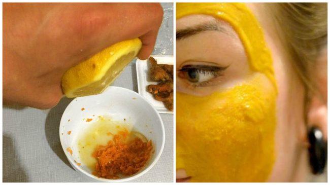 Kako se rešiti fleka na licu, pega i hiperpigmentacije