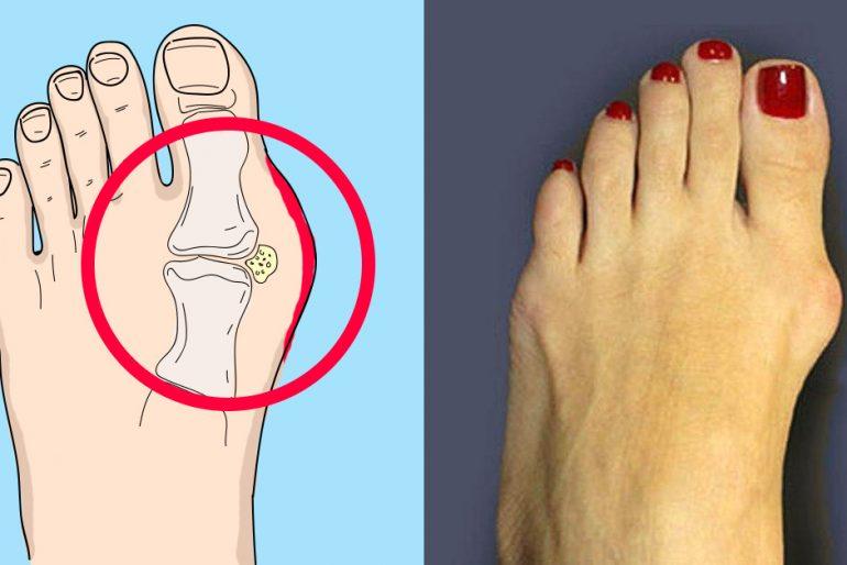 Lečenje reumatoidnog artritisa: odlično domaće sredstvo.
