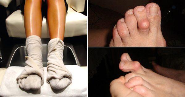 Lečenje reumatoidnog artritisa