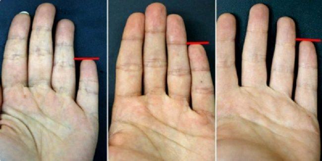 Evo šta mali prst na ruci može reći o vama