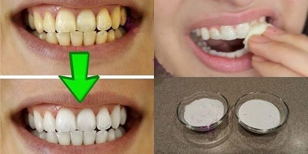 Zagarantovano izbeljivanje zuba za manje od 2 minuta!
