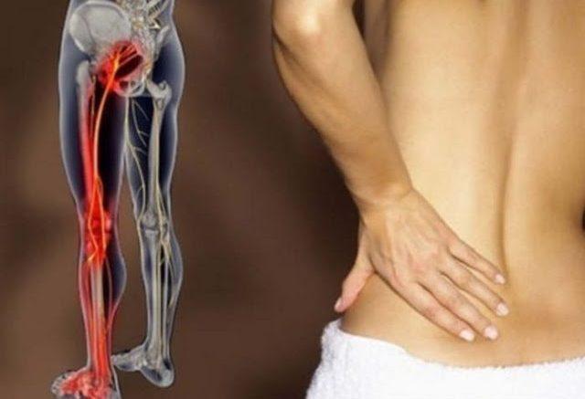 Kako otklještiti uklješteni živac u lumbalnom delu (išijas): 2 jednostavna načina osloboditi se bola.