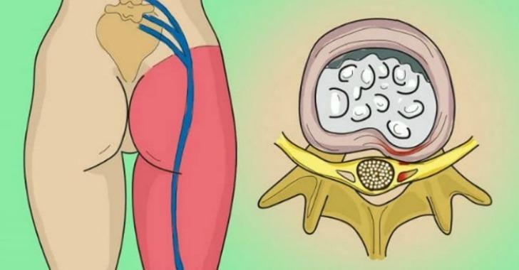 Image result for Kako otklještiti uklješteni živac u lumbalnom dijelu (išijas): 2 jednostavna načina osloboditi se bola.