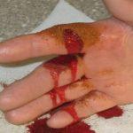 Sredstvo koje zaustavlja krvarenje za samo 10 sekundi