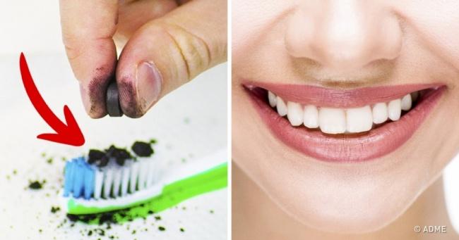 5 trikova za izbeljivanje zuba u kućnim uslovima.